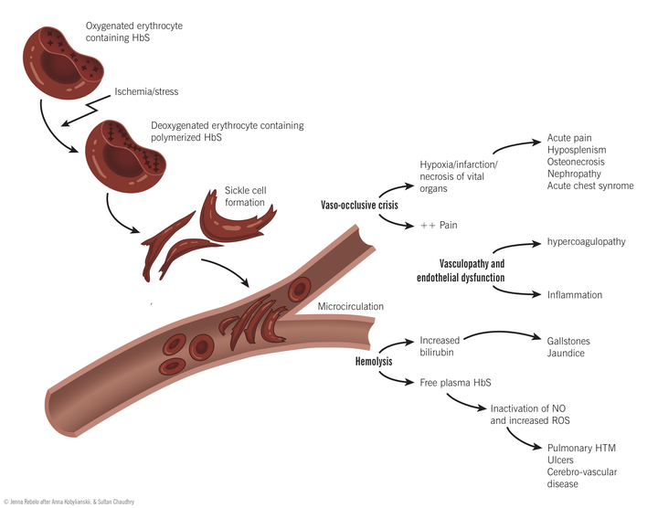 Sickle Cell Disease - Pathophysiology of disease and ...   GrepMed
