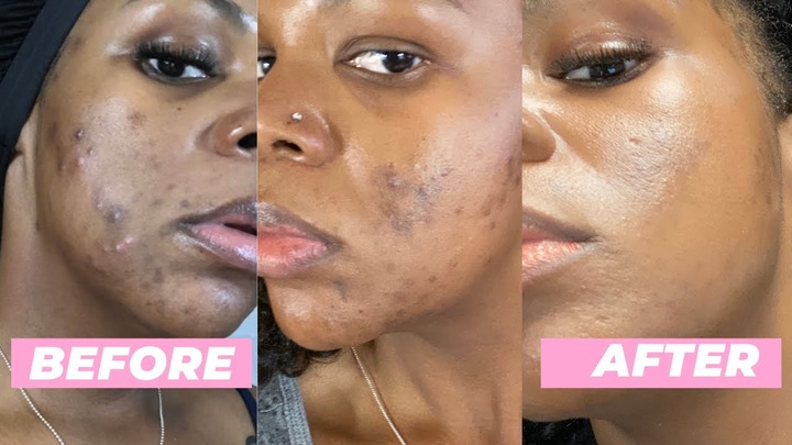 How to Get Rid of Dark Spots from Acne on Black Skin (at Home) - YouTube