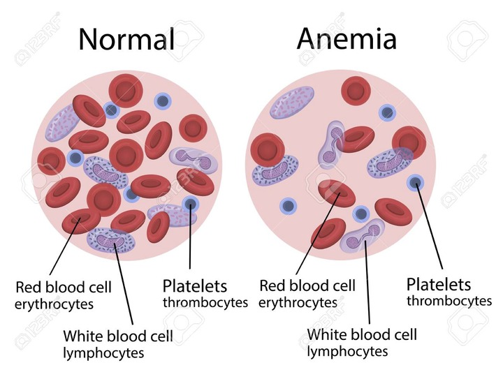 Vector Illustration Of Anemia. Blood Composition Royalty Free Cliparts,  Vectors, And Stock Illustration. Image 148208225.