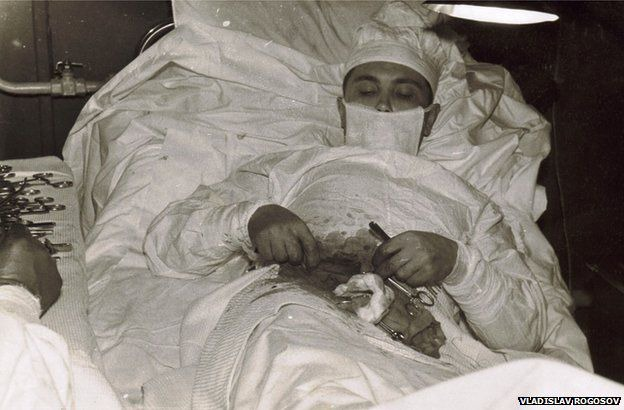 The man who cut out his own appendix - BBC News
