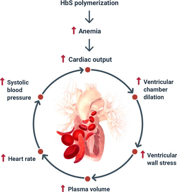 Anemia, Hemolysis, and Vaso-Occlusion Drive SCD Damage