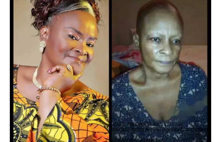 A Year After Davido Gave Her 1 Million Naira For Her Cancer Treatment, See How Actress Ify Onuwuemene Looks Now (Photos)
