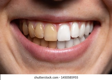 Yellow Teeth HD Stock Images | Shutterstock