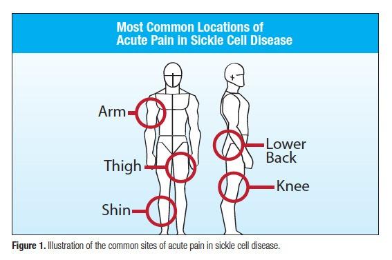 Pain Management Dilemmas of Sickle Cell Disease