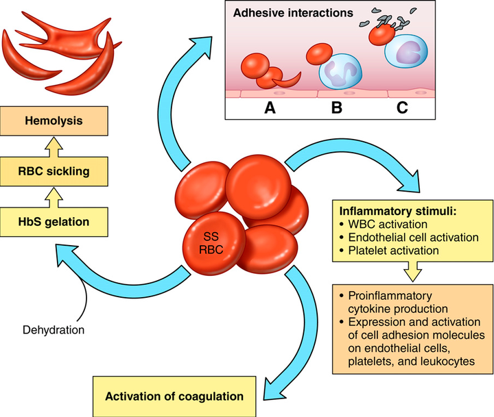 Figure 1 from SICKLE CELL DISEASE : CHALLENGES AND PROGRESS Beyond  hydroxyurea : new and old drugs in the pipeline for sickle cell disease |  Semantic Scholar
