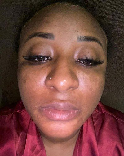 4 Months After Suffering A Severe Skin Damage, See How Ini Edo Looks Like Now