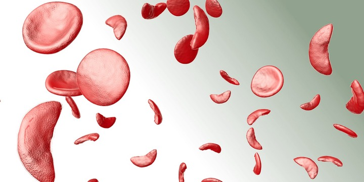 NaTHNaC - Sickle cell disease and thalassaemia