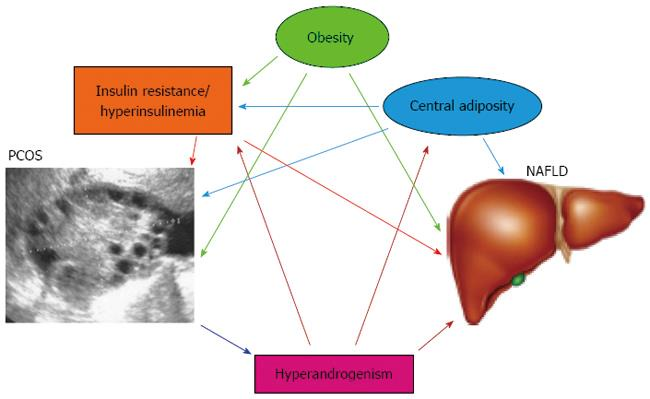 Nonalcoholic fatty liver disease and polycystic ovary syndrome