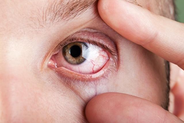 Vision Problems: 11 Symptoms of Vision Changes