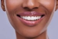 Opinion: How to carefully fill your tooth holes at home without stress. b12d58324f275453a09738b41baad728 quality uhq format jpeg resize 720 watermark false