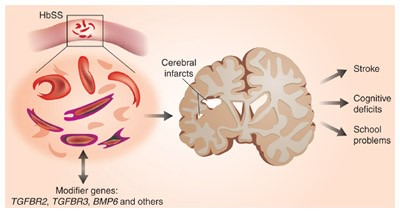 Defining stroke risks in sickle cell anemia | Nature Genetics