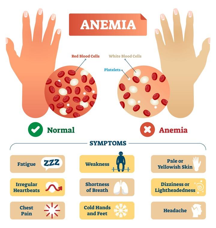 Iron-Deficiency Anemia -