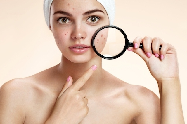 10 Top Causes of Pimples and How to Treat