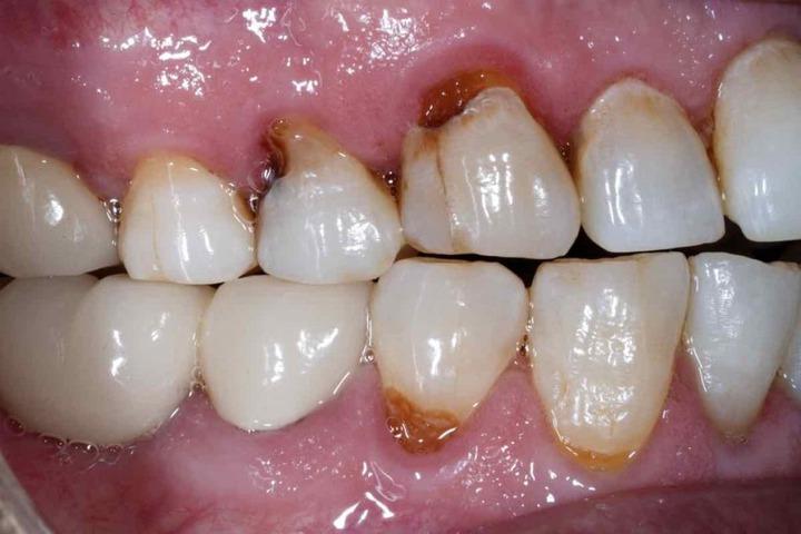 Are Rotten Teeth Dangerous? - Museum Dental Center Museum Dental Center