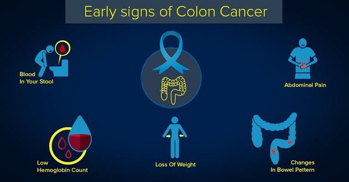 Early Signs Of Colon Cancer You Should Never Ignore Opera News