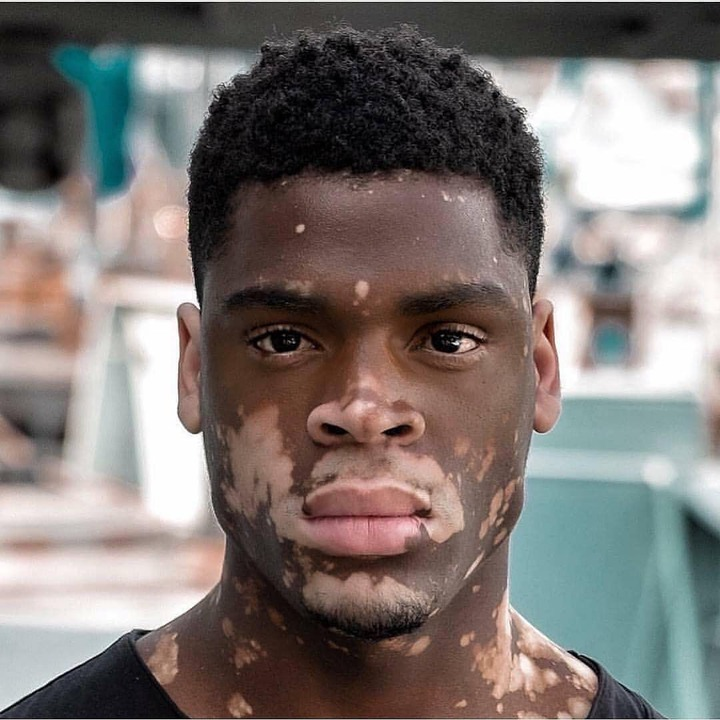 Meet The Male Vitiligo Model That Has Been Making Waves On Social Media Photos Opera News