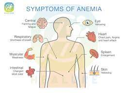 """Healure on Twitter: """"Symptoms Of Anemia #Anemia… """""""