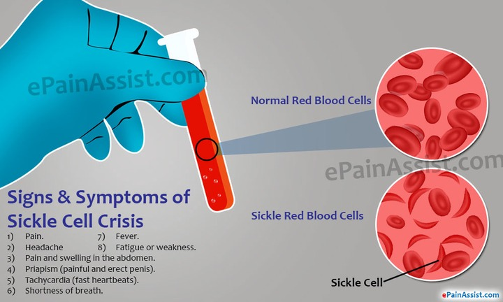 What is Sickle Cell Crisis and How is it Treated?