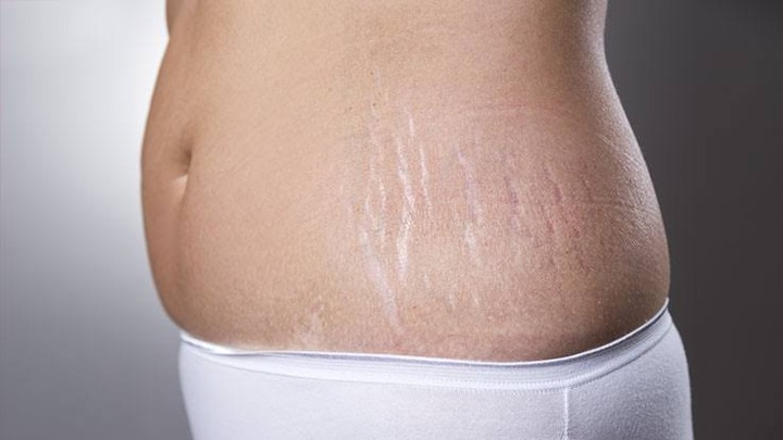 Home remedy to get rid of Stretch Marks fast and easy at no cost. - Opera  News