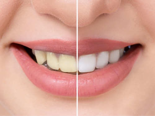 How to whiten your teeth with common kitchen ingredients | The Times of  India